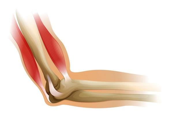 スウェディッシュマッサージの効果、筋肉の緊張や痛みを和らげる